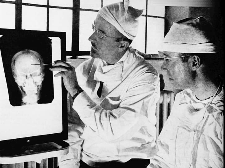 Dr. Walter Freeman, left, and Dr. James W. Watts study an X ray before a psychosurgical operation