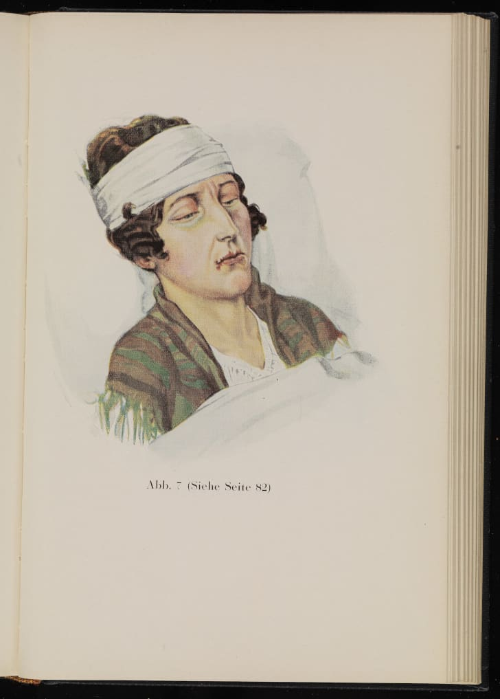 Illustration of a woman suffering from malaria