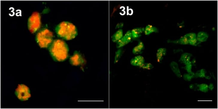 Fluorescent In-Situ Hybridization confirming that intrabacterial symbionts reside inside Tremblaya cells in (A) M. hirsutus and (B) P. marginatus mealybugs. Tremblaya cells are in green, and γ-proteobacterial symbionts are in red. (Scale bar: 10 μm.)