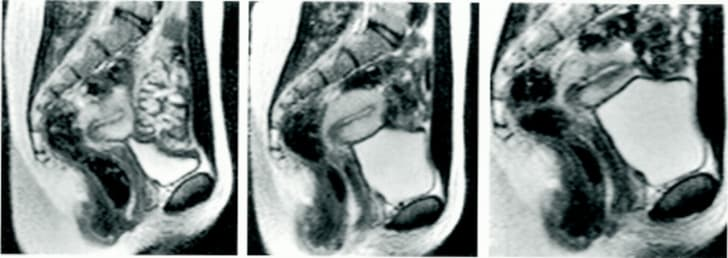 MRI of a woman before, pre-, and after orgasm