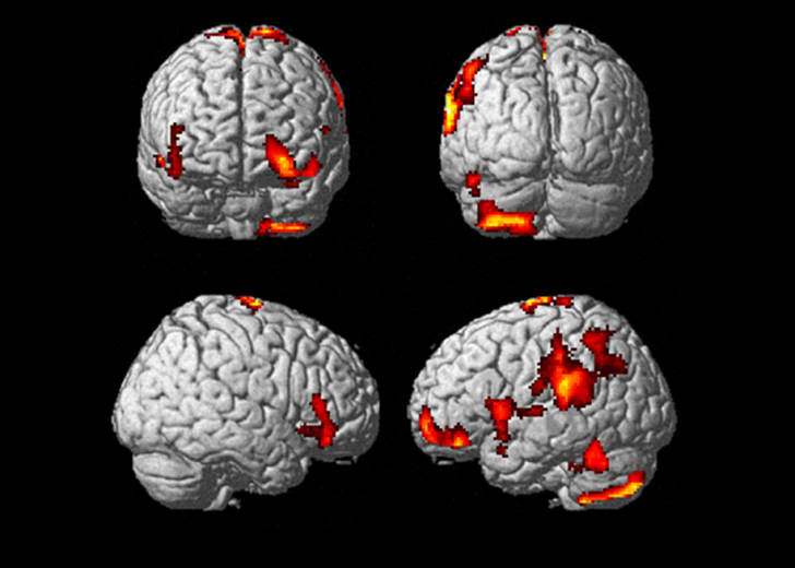 Four brain scans with different areas of the brain lit up in red, yellow, and orange