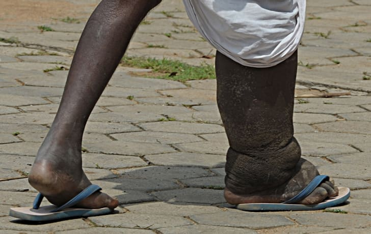 An elderly man suffering from elephantiasis; one of his legs is much bigger than the other.