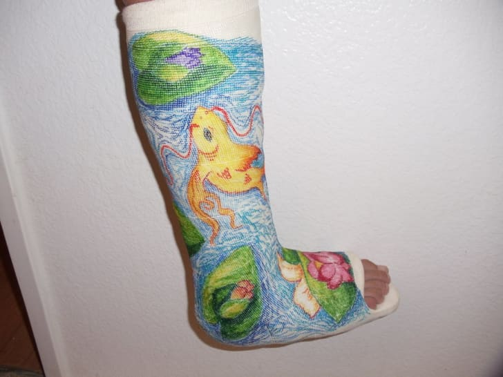 11 Awesomely Decorated Casts Worth a Broken Bone   Mental Floss