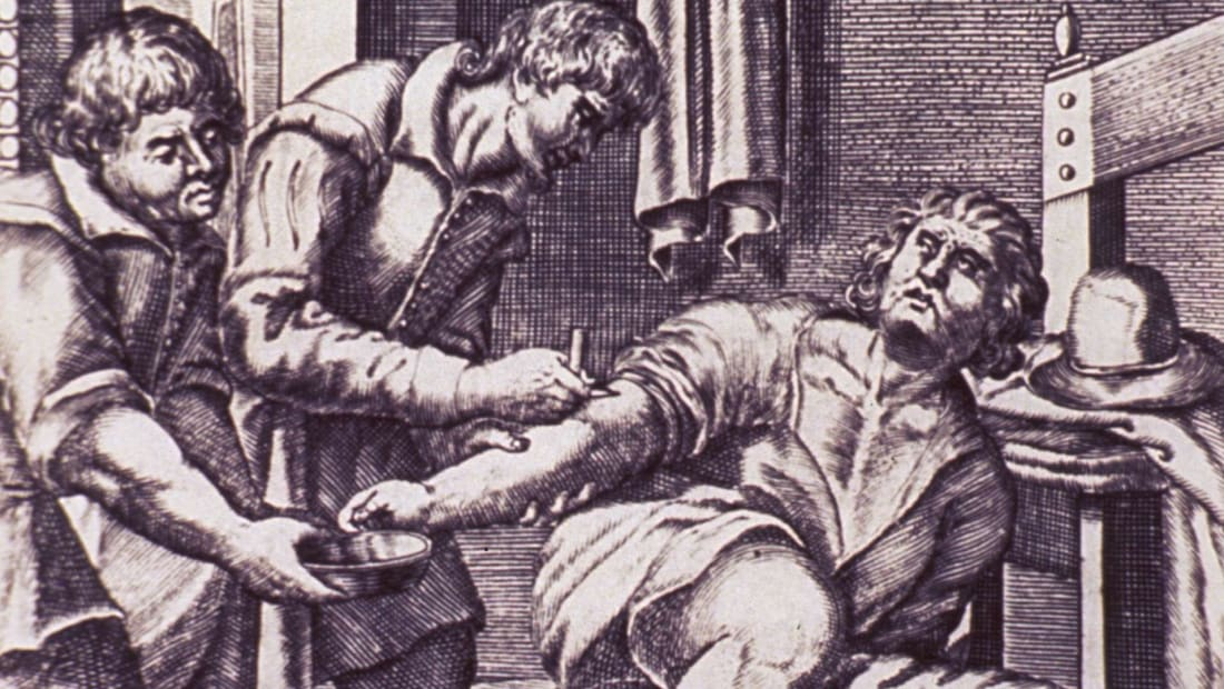 Venesection on male patient by Cintio d'Amato, 1671