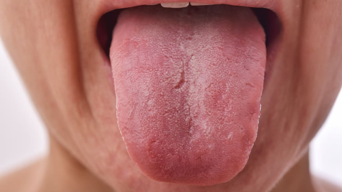 Cracks on your tongue can be a peculiar sight.