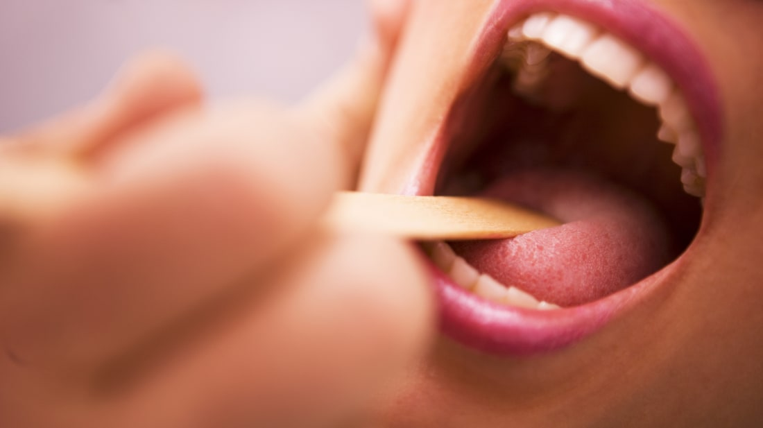 What Are Tonsil Stones? | Mental Floss