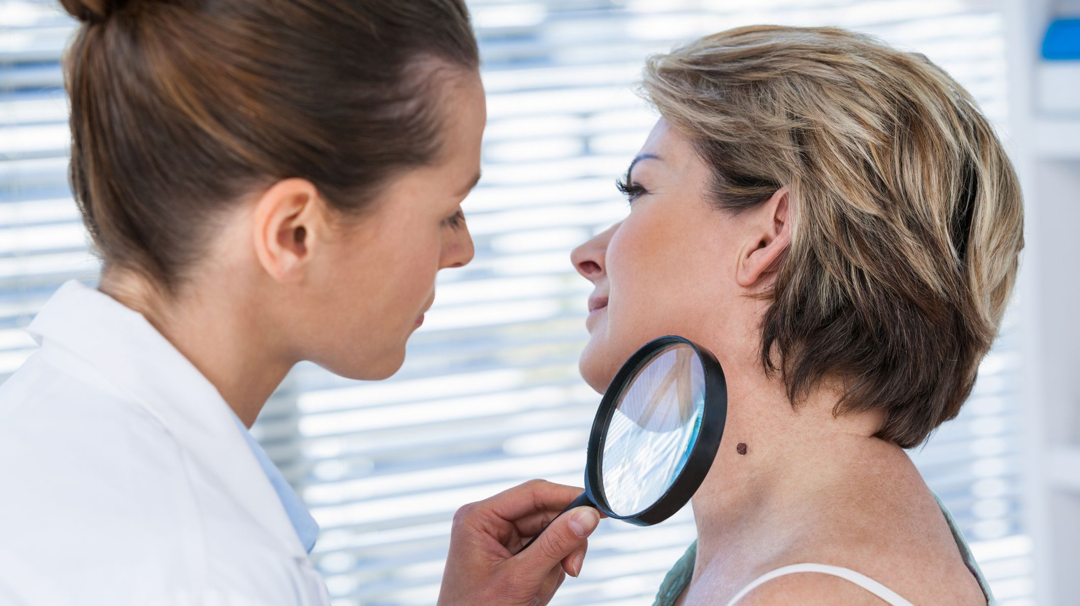 What Are Skin Tags And How Do You Get Rid Of Them Mental Floss