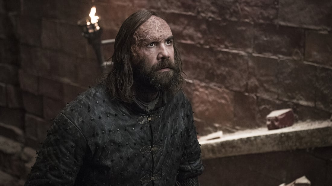 Rory McCann stars as The Hound in Game of Thrones