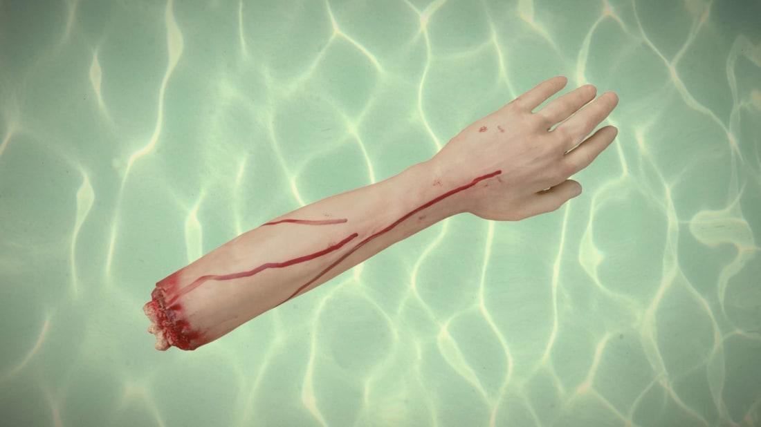 Matayang (pool), Bun_Visit (arm)/iStock via Getty Images Plus