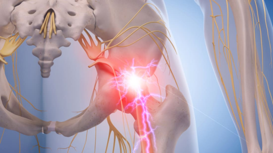 13 Facts About the Sciatic Nerve | Mental Floss