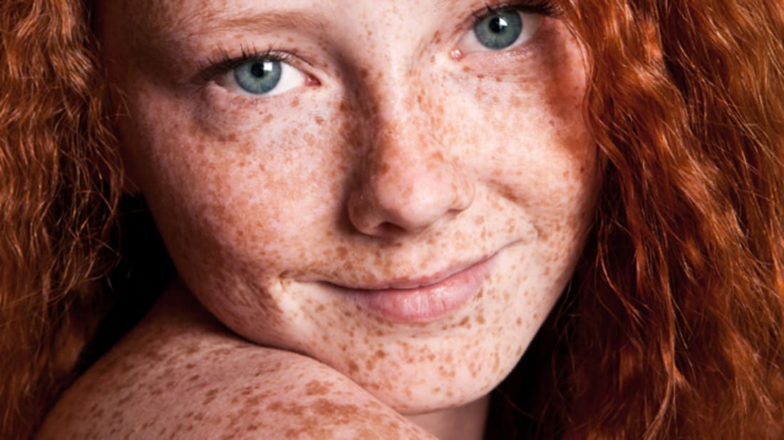 AND WHAT ARE FRECKLES?