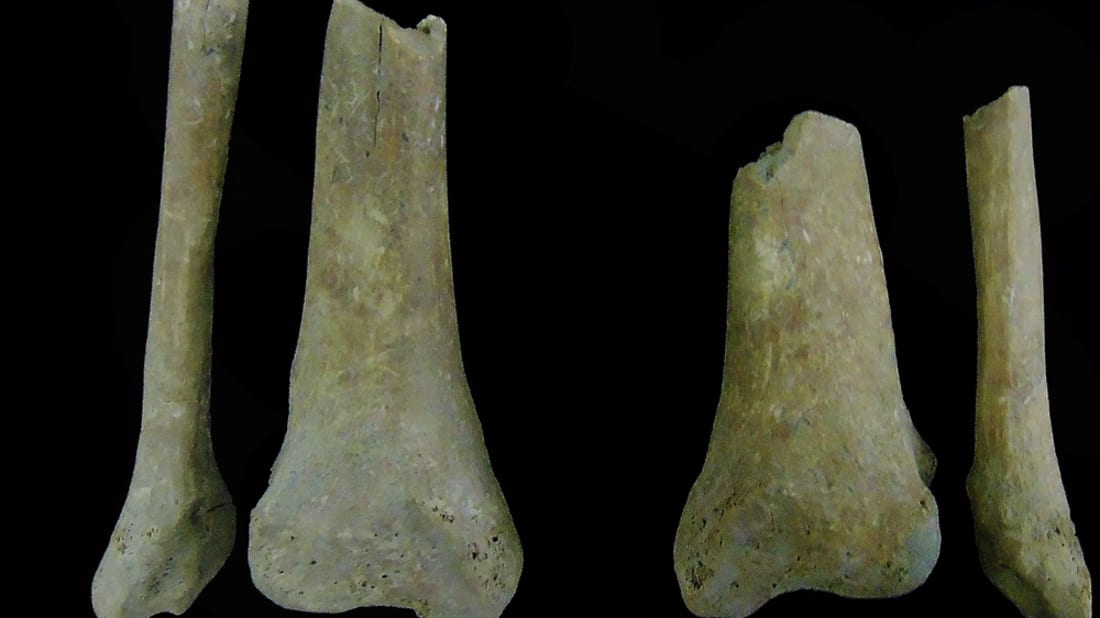 Oblique cuts in the bottom third of the legs of a medieval skeleton found in Portugal.