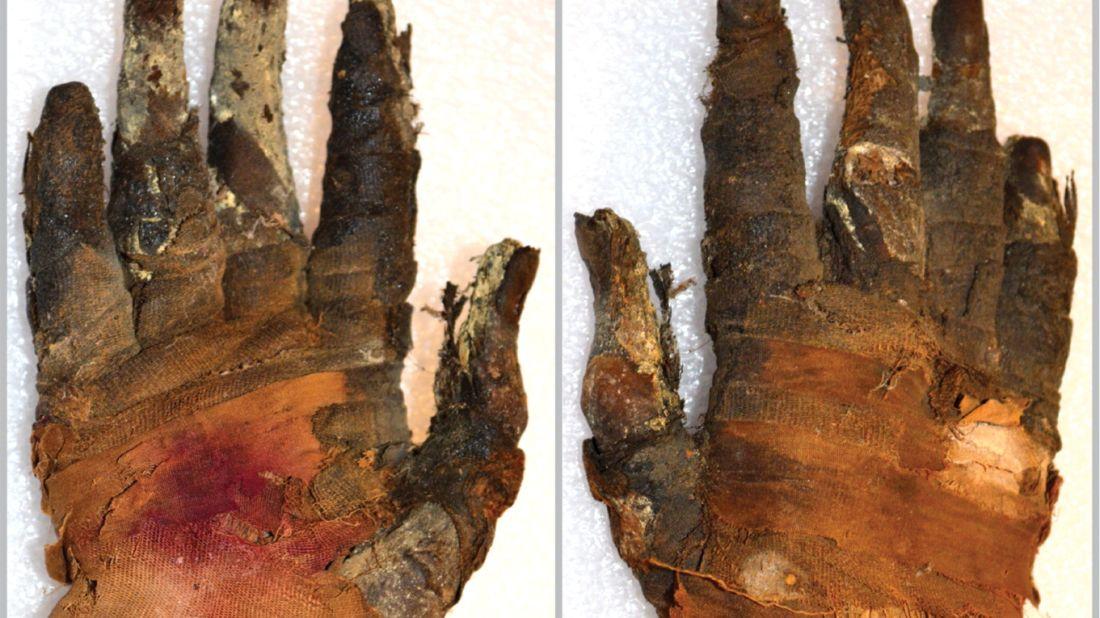 Jenny Romell, et al./Radiology