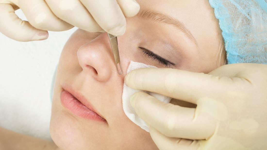 5 Facts About Blackheads from Dr  Pimple Popper | Mental Floss