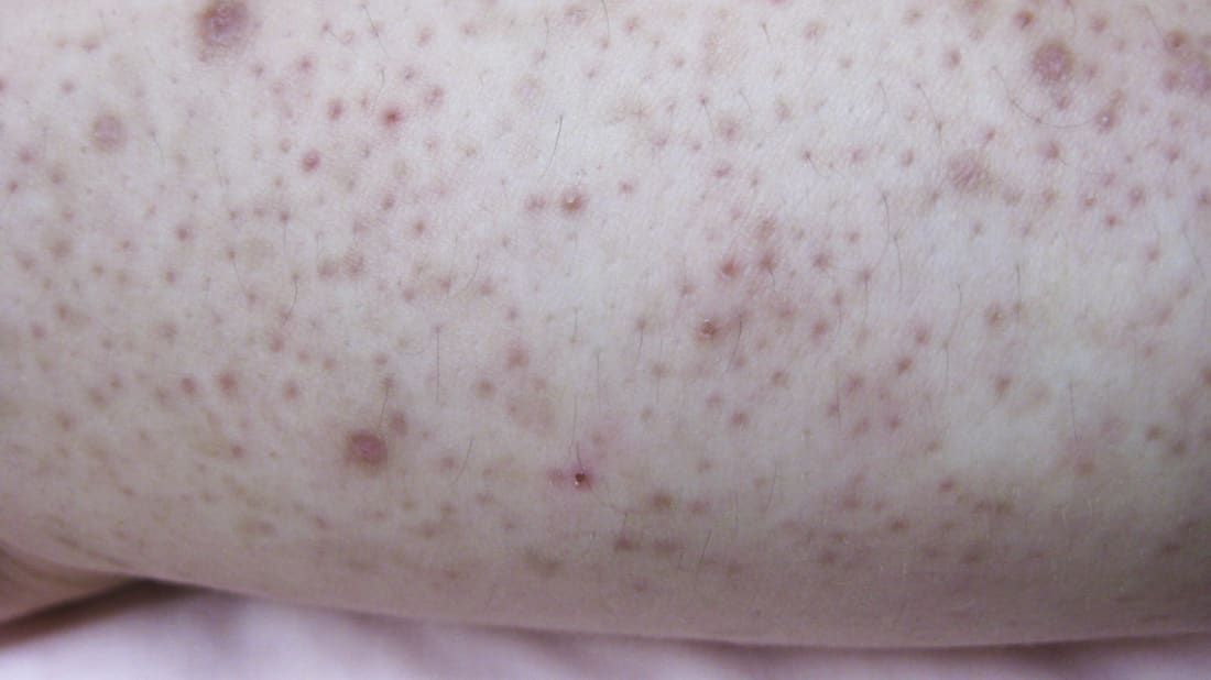 10 Facts About Keratosis Pilaris From Dr Pimple Popper