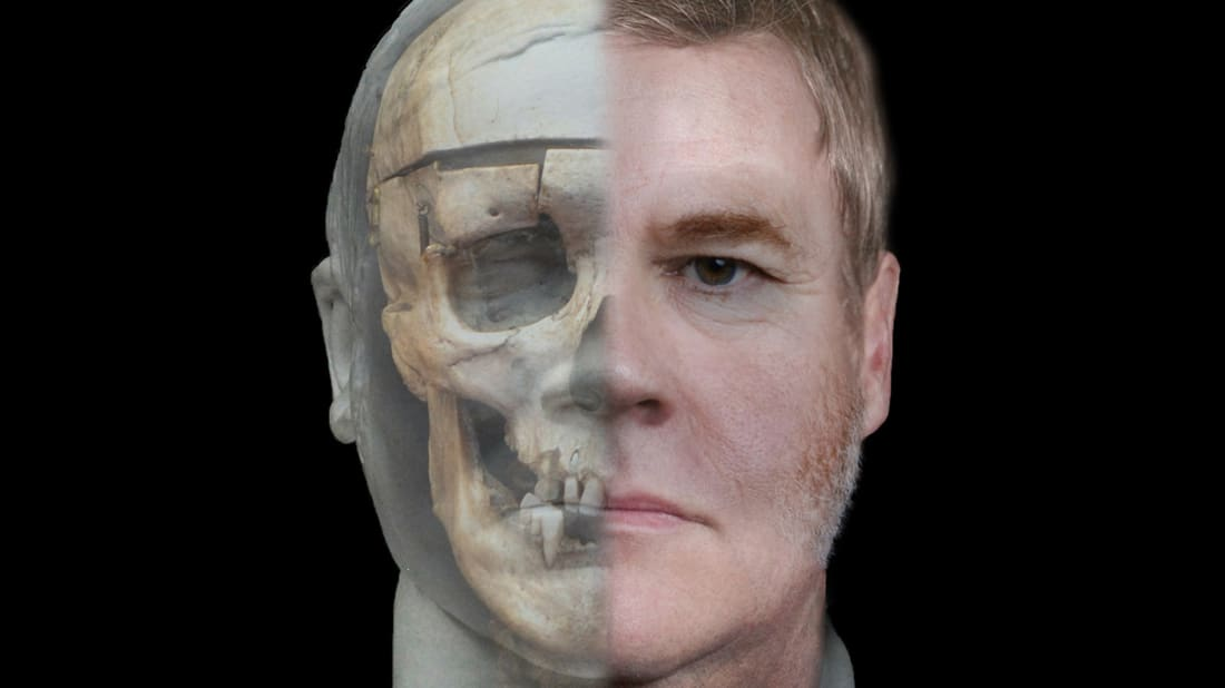 A facial reconstruction of William Burke