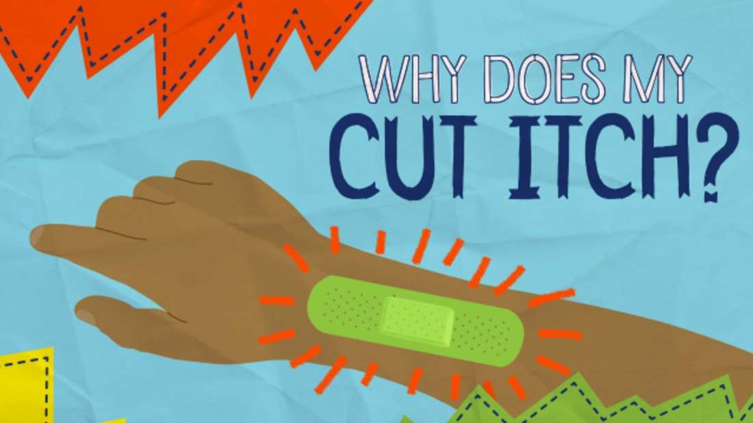 Why Does My Cut Itch? | Mental Floss