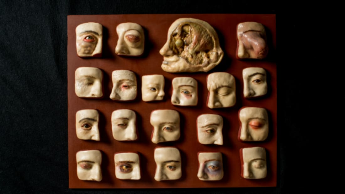 Diseases of the eye. Mütter Museum