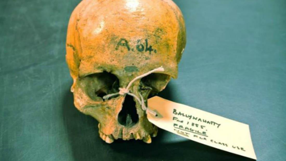 Skull of a Neolithic farmer // Image Credit: Daniel Bradley, Trinity College Dublin