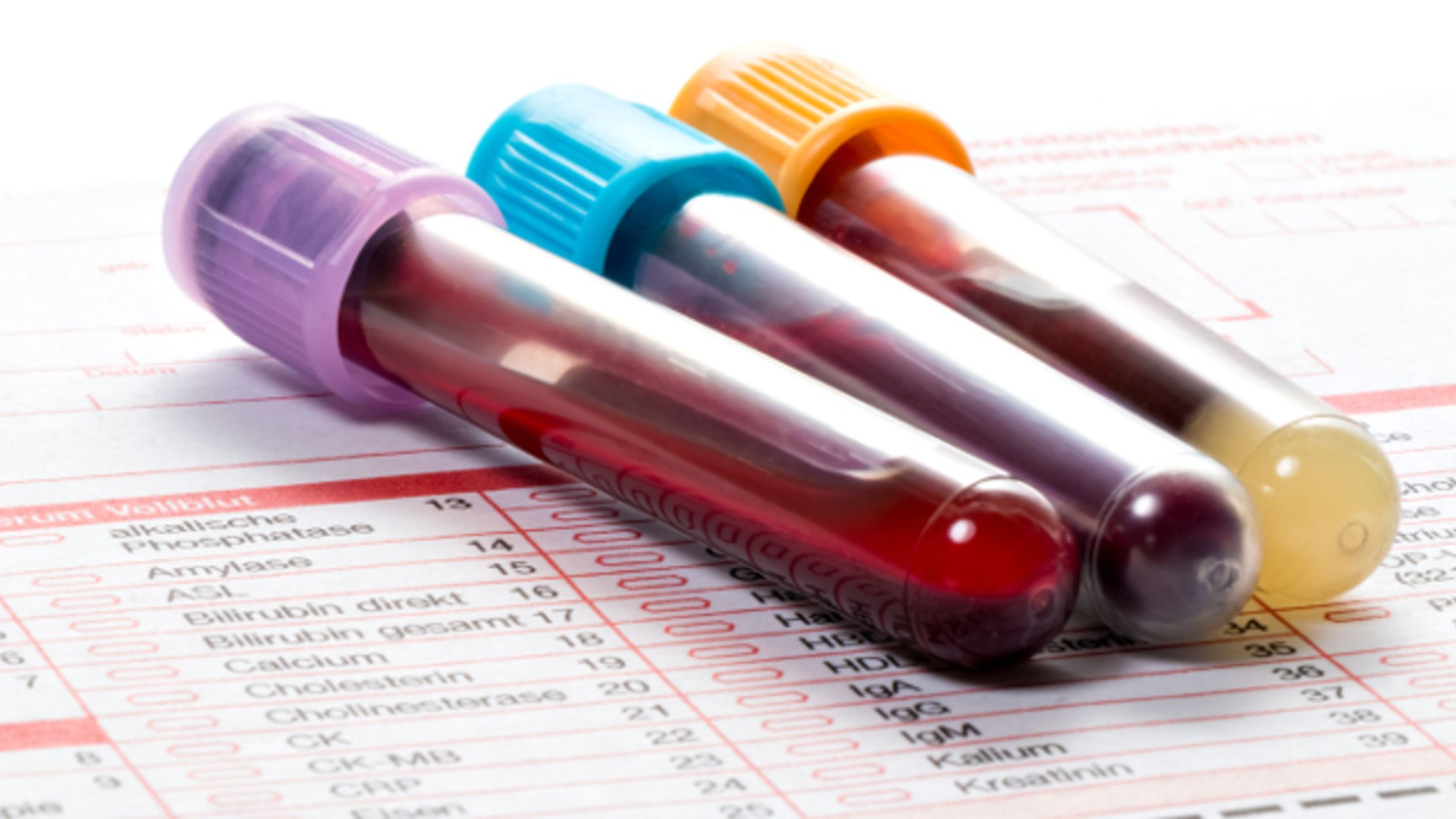 7 Sanguine Facts About Human Blood | Mental Floss
