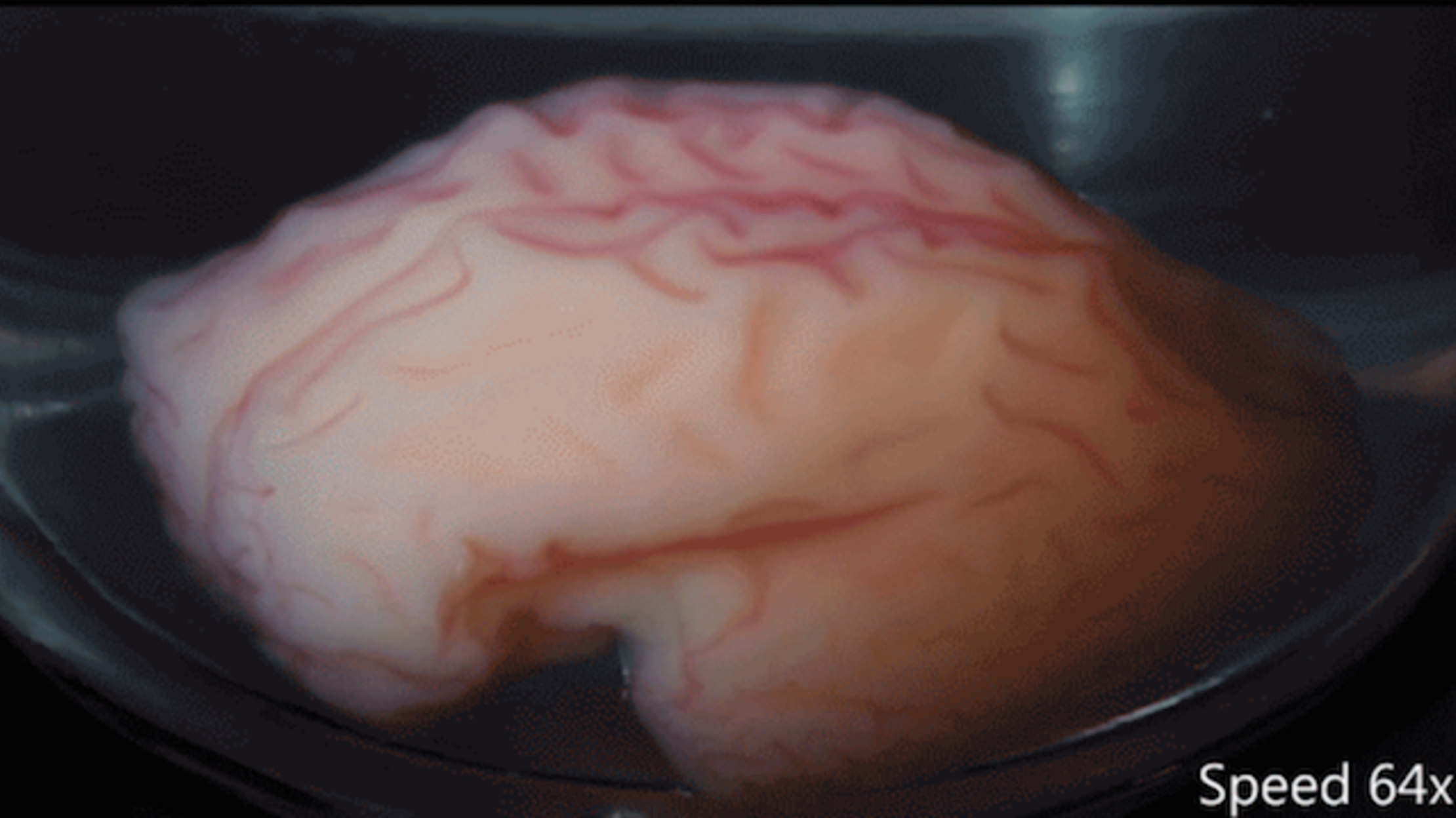 Parts Of The Brain Diagram Quiz The 3d Brain Layers Part Of