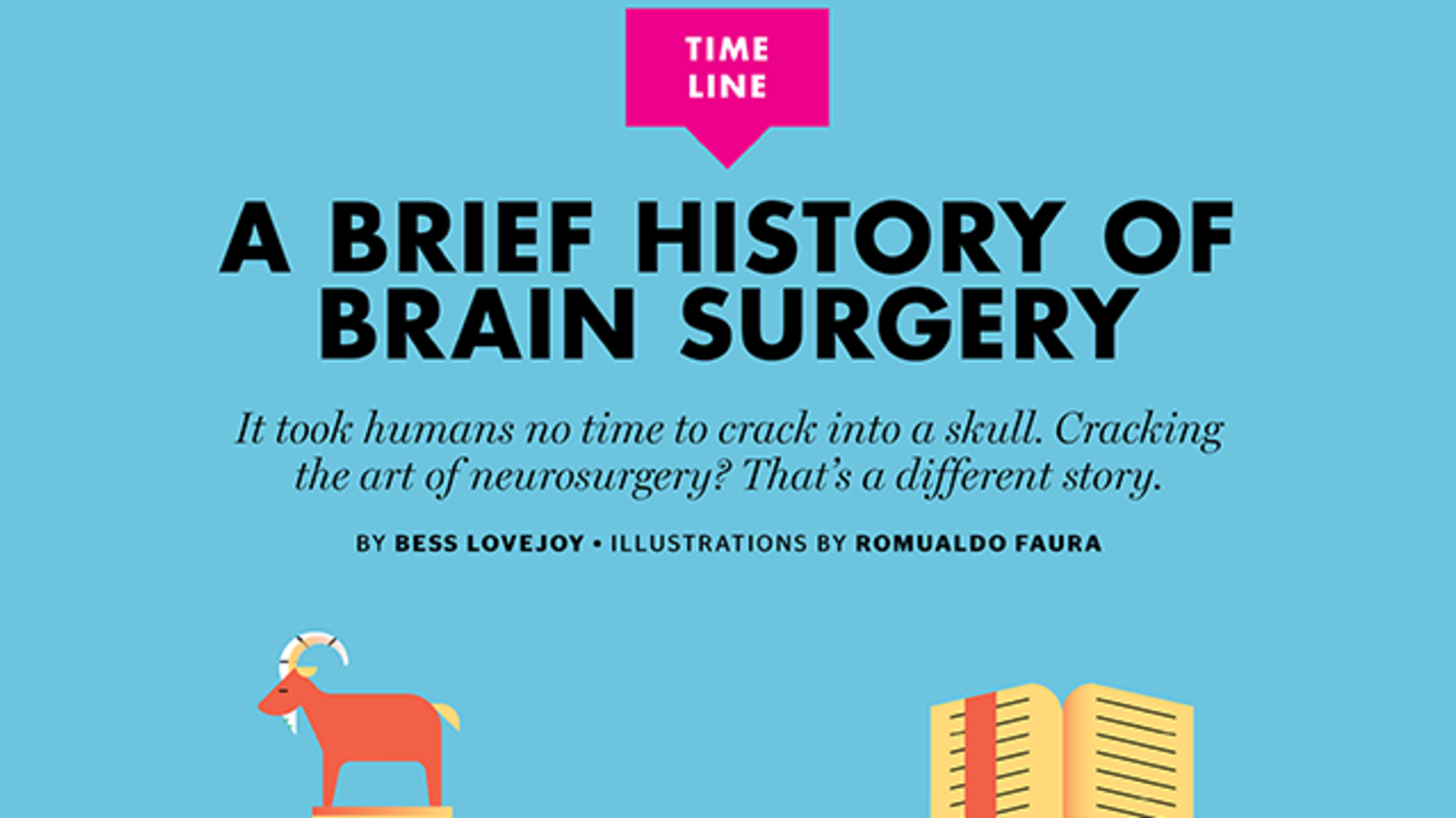 A Brief History of Brain Surgery | Mental Floss