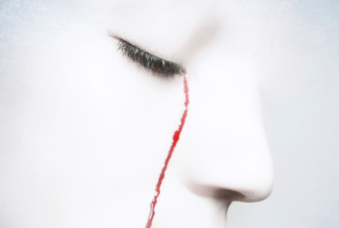 Haemolacria: A Rare Condition That Makes People Cry Blood | Mental Floss