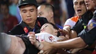 Một nữ cổ động viên tại sân Hàng đẫy đã bị thương do quả pháo sáng mà CĐV Nam Địnhbất ngờ bắn sang từ phía khán đài B trong trận cầu giữaHà Nội và Nam...