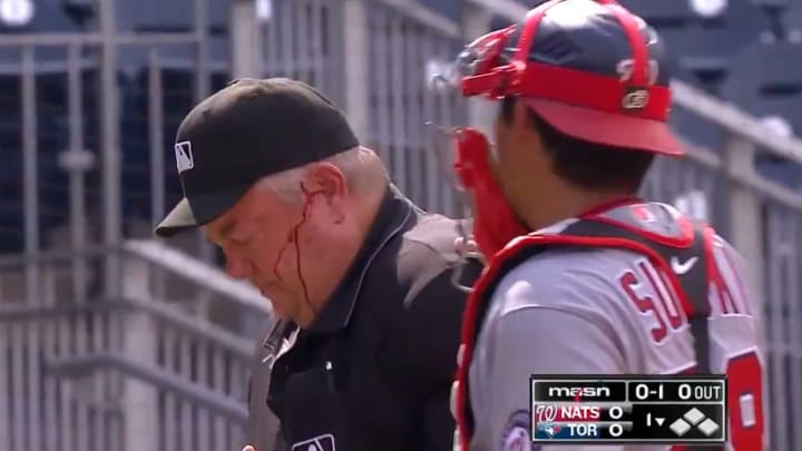 Joe West bleeding after Bo Bichette hit him in the head with his bat