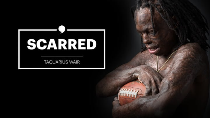 Scarred | By TQ Wair