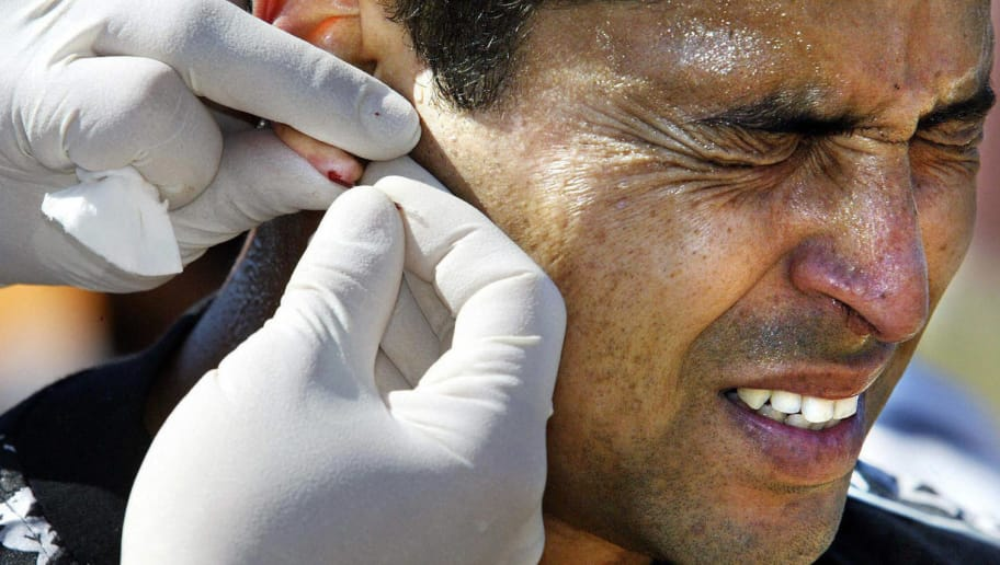 FC Kaiserlautern's Brazilian international Ratinho grimaces as a doctor from the Cologne Sports Institute draws blood from his earlobe for a lactic acid test, during the soccer team's training session in Kaiserlautern 26 June 2003.  Teams of Germany's Bundesliga have started training for the next season which starts in August. AFP PHOTO DDP/THOMAS LOHNES     GERMANY OUT  (Photo credit should read THOMAS LOHNES/AFP/Getty Images)