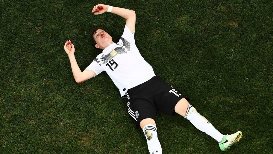 TOPSHOT - Germany's midfielder Sebastian Rudy awaits medical attention following a collision during the Russia 2018 World Cup Group F football match between Germany and Sweden at the Fisht Stadium in Sochi on June 23, 2018. (Photo by Jewel SAMAD / AFP) / RESTRICTED TO EDITORIAL USE - NO MOBILE PUSH ALERTS/DOWNLOADS        (Photo credit should read JEWEL SAMAD/AFP/Getty Images)