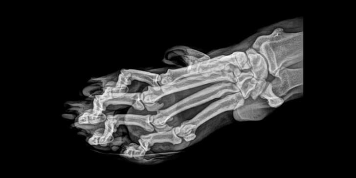 An X-ray image of a tiger paw courtesy of the Oregon Zoo