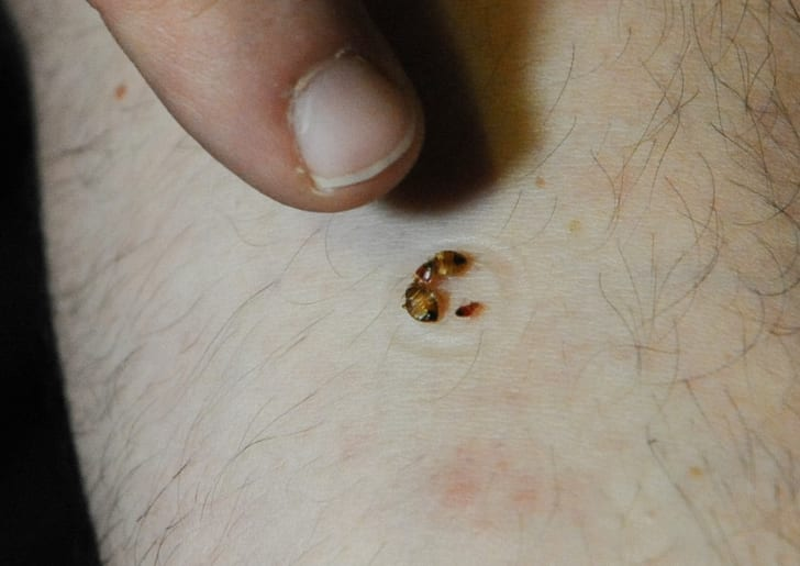 A man pointing to bed bugs feeding on his arm.