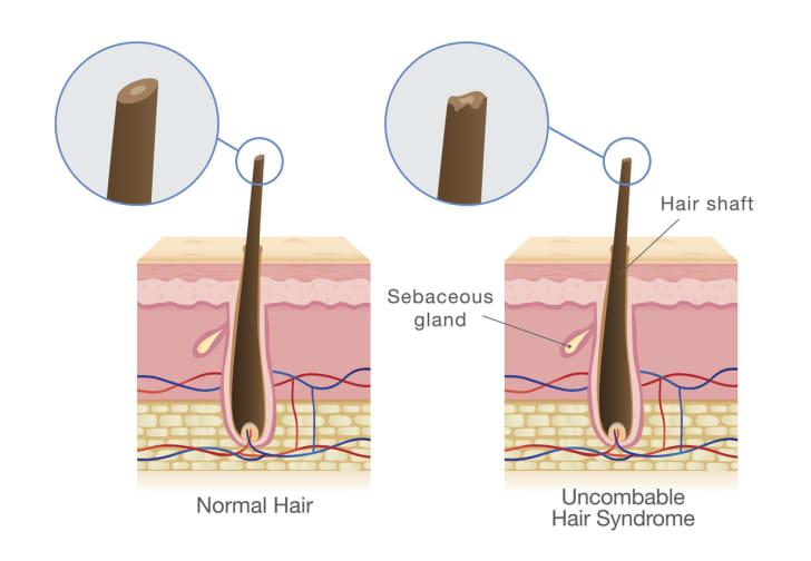 A diagram of a hair follicle