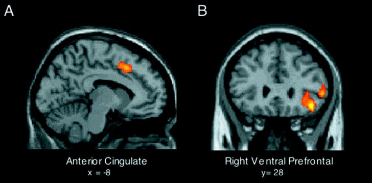 Two brain scans
