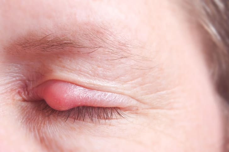 Close-up of an eye stye.