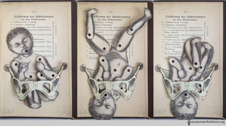 19th century Obstetrical Pocket Phantom
