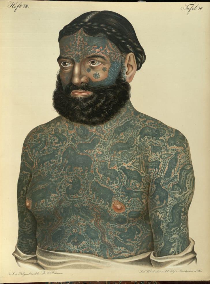 Circus performer Georg Constantin as depicted in Ferdinand Hebra's dermatological atlas