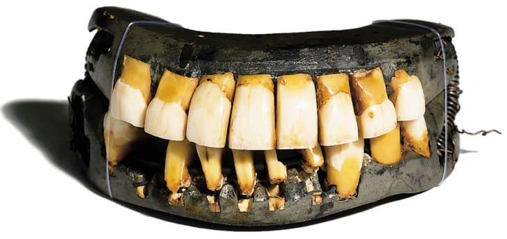 A set of historic dentures