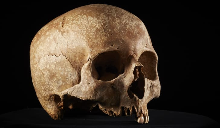 A Roman skull, uncovered by archaeologists during the expansion of the London Underground.
