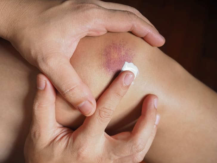 A person putting a bandage on a bruised knee.