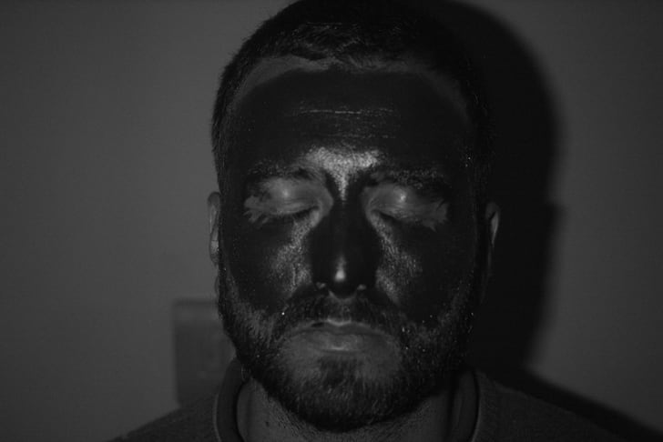 A UV photo of a man shows white patches of bare skin underneath dark-looking sunscreen.