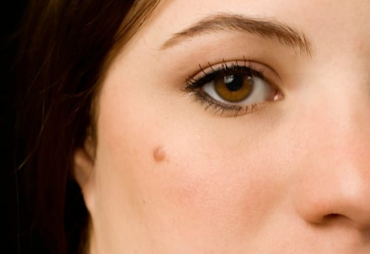 Young woman with a mole on her cheek