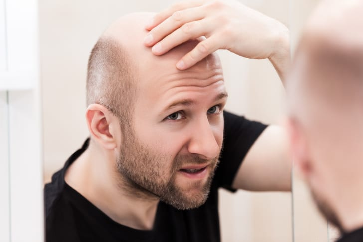 Photo of a balding man looking in the mirror