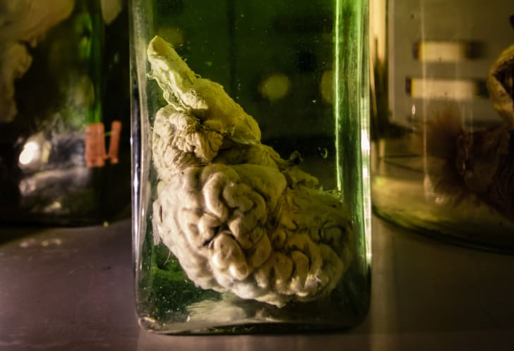 Animal brain in jar.