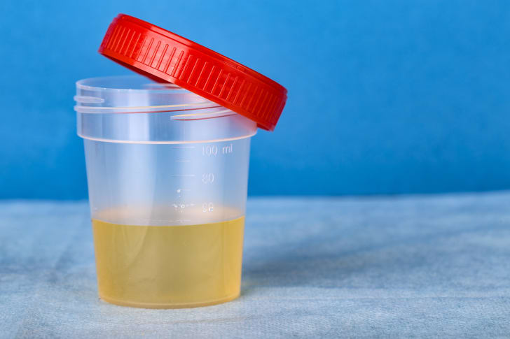 Cup of urine.