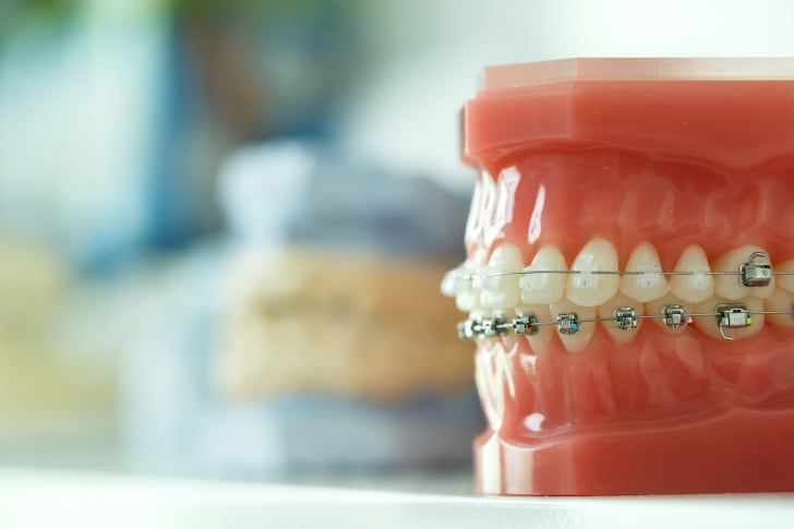 Model of teeth with braces