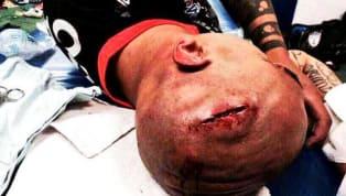 NO APTO PARA SENSIBLES | Las 11 lesiones más impactantes de la Liga MX