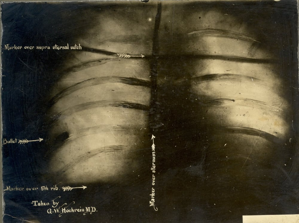 19. An X-Ray of the Bullet in Theodore Roosevelt's Chest